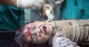 إسرائيل تُكشر عن إرهابها والمجازر (عرض مستمر)