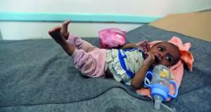 اليمن: 600 ألف معرضون للإصابة بالكوليرا عام 2017