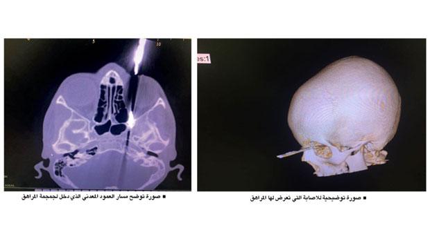 استخراج عمود معدني من داخل جمجمة مراهق مستشفى خولة