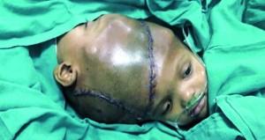 جراحة ناجحة بالهند لفصل توأمين ملتصقين عند الرأس