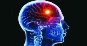 التحفيز العصبي قد يحد من تلف السكتة الدماغية