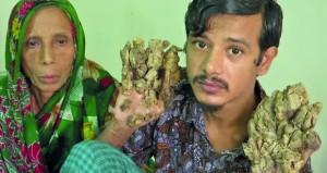 (الرجل الشجرة) في بنجلاديش يرغب في بتر يديه