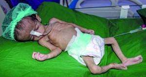 اليمن: قوات هادي تعلن استعادة مواقع جديدة من قبضة (أنصار الله)