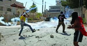 إصابات بالاختناق خلال اقتحام للاحتلال بالقدس